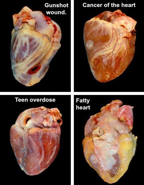 heartafflictions