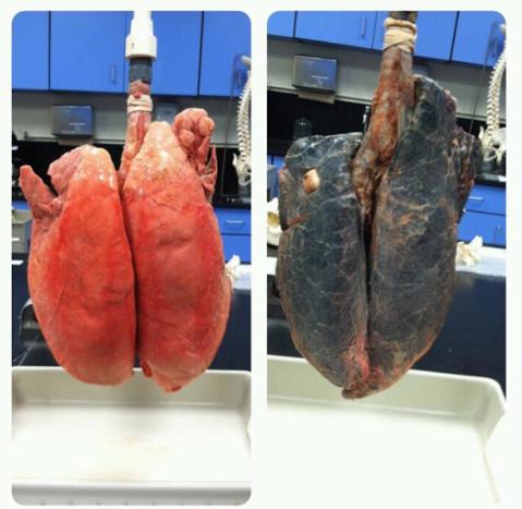 lungscomparison