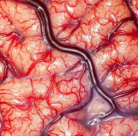 living human brain surface